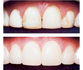 before and after image of dental bonding
