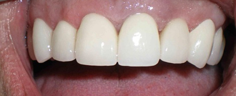 Instant Orthodontics - After