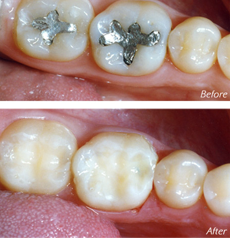 before and after of mercury filling removal